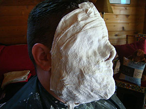 Alginate and Bandage Lifecast In Progress
