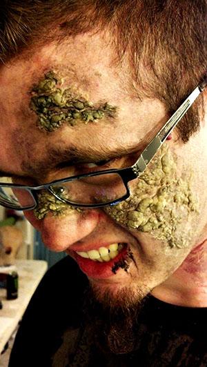 Disease makeup